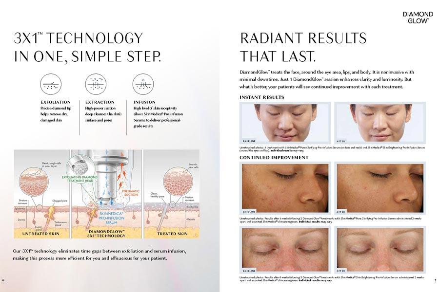 DiamondGlow treatment Rebate Offer